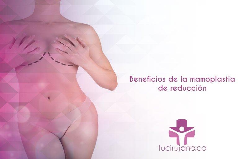Beneficios de la mamoplastia de reducción
