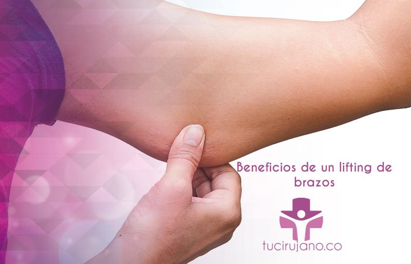 Beneficios de un lifting de brazos