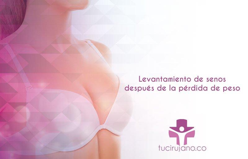 Levantamiento de senos después de la pérdida de peso