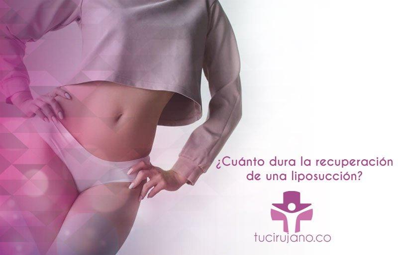 ¿Cuánto dura la recuperación de una liposucción?